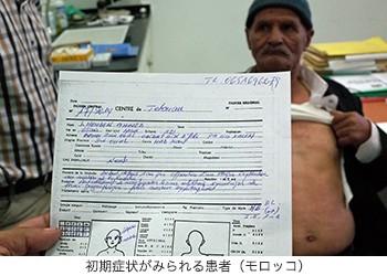 04-初期症状がみられる患者(モロッコ)