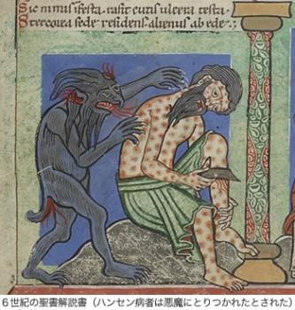 05-6世紀の聖書解説書(ハンセン病者は悪魔にとりつかれたとされた)