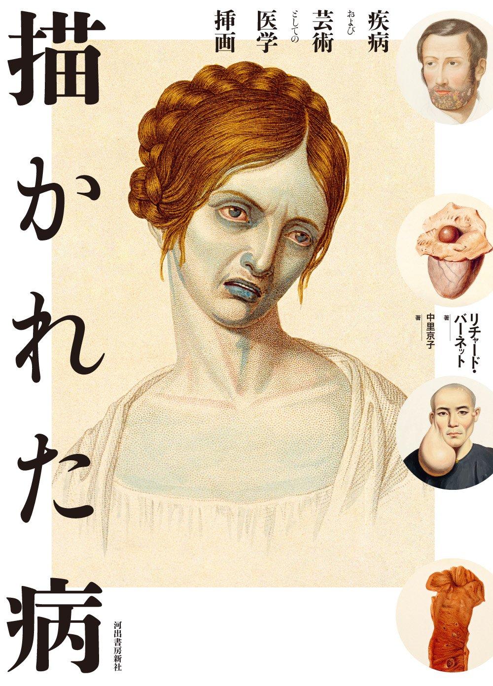 描かれた病―疾病および芸術としての医学挿画